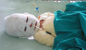 Uống nhầm nước sôi vừa nấu, bé trai ở Nghệ An tử vong khi mới 19 tháng tuổi
