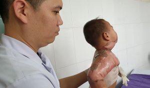 Ngã vào nồi lẩu, cháu bé 22 tháng tuổi bị bỏng nặng-1